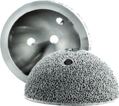 3D printed titanium hip